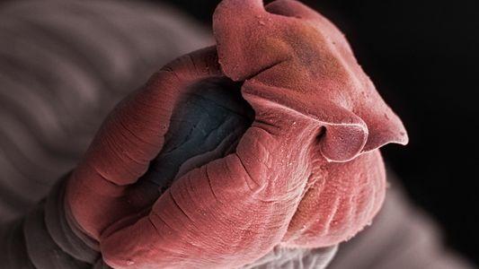 Insectes et parasites comme vous ne les avez jamais vus
