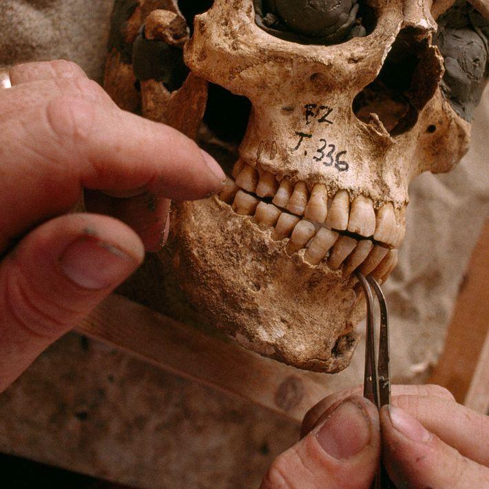 Les dents de ce crâne datant de la Grèce antique indiquent que l'individu a souffert de ...