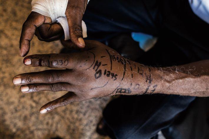 Sur la main de Baldé, les marques montrent la progression du gonflement dans les trente minutes ...