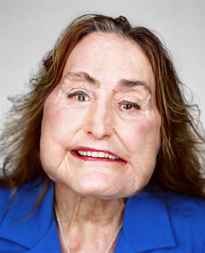 En décembre 2008, Connie Culp est devenue la première personne à recevoir une greffe de visage ...