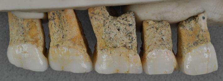 Cinq des sept dents attribuées à l'Homo luzonensis. Les dents sont de petites tailles et leurs ...