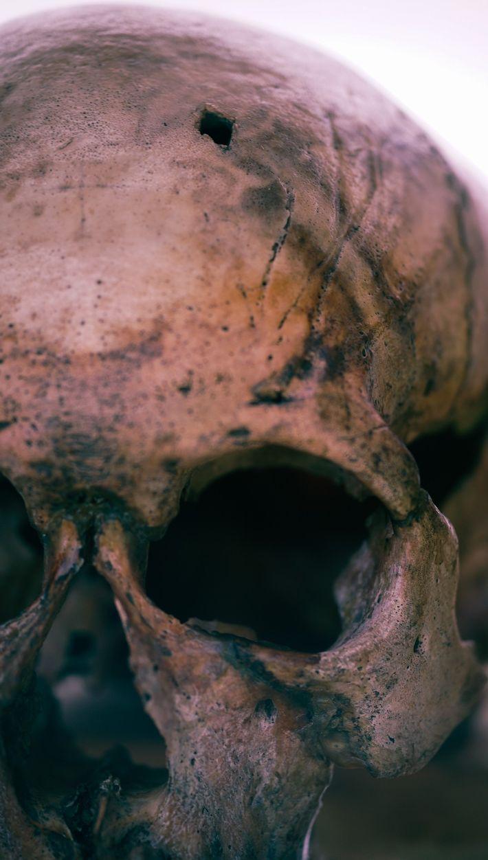 Les archéologues ont remarqué cette blessure en forme de losange, probablement infligée par une pointe de ...