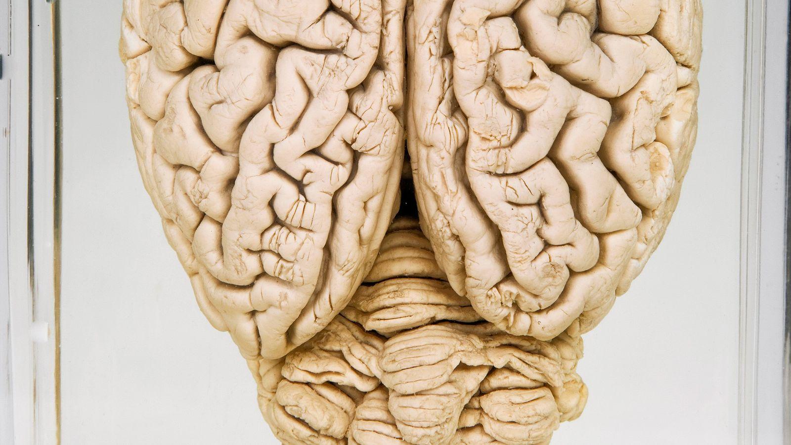 Cette photo montre un cerveau de cochon préservé. À l'aide de cerveaux d'animaux abattus pour leur ...