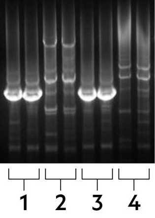Les résultats de l'électrophorèse montrent la mutation d'insensibilité à la douleur dans l'ADN de Jo Cameron ...