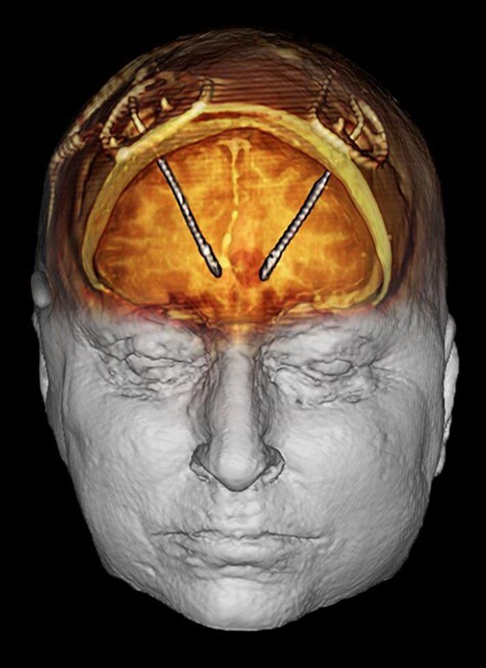 Lors d'une stimulation cérébrale profonde, deux microélectrodes ont été implantées dans le cerveau de Grubb et ...