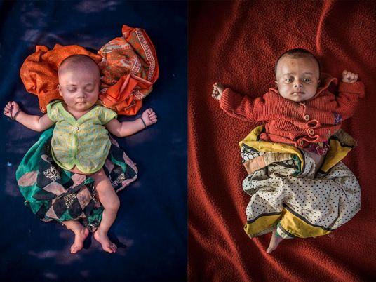 Apatrides de naissance : aux côtés des bébés nés dans les camps de réfugiés