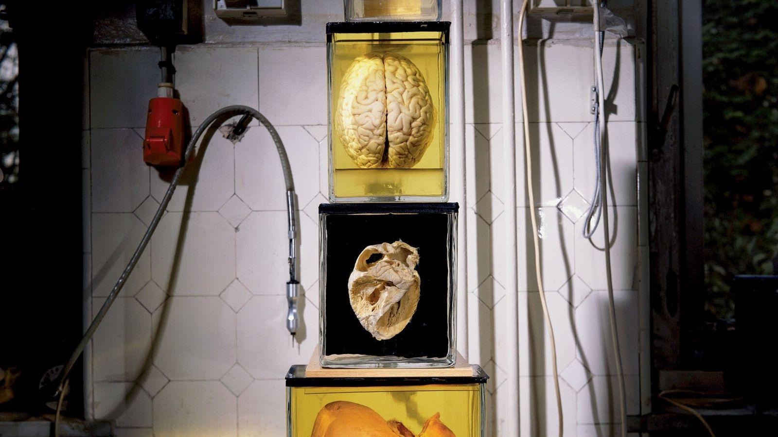 Max Aguilera-Hellweg a pris cette photo de spécimens pathologiques à Berlin alors qu'il réalisait un sujet ...