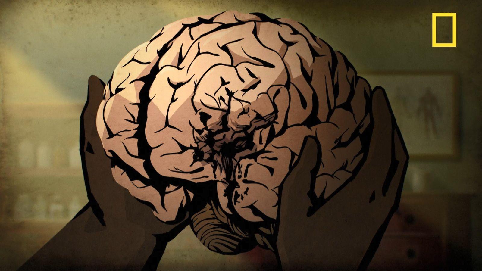 Comment un Français a révolutionné la compréhension du cerveau