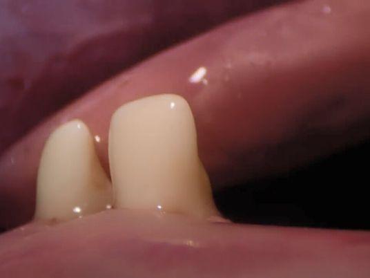L'histoire de l'être humain : la première dent de bébé