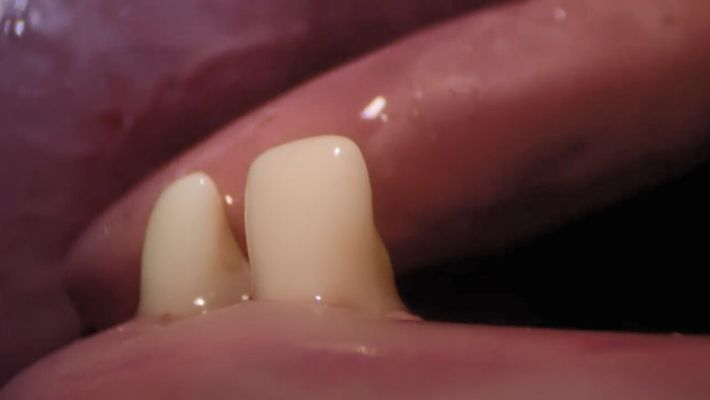 Les premières poussées de dents