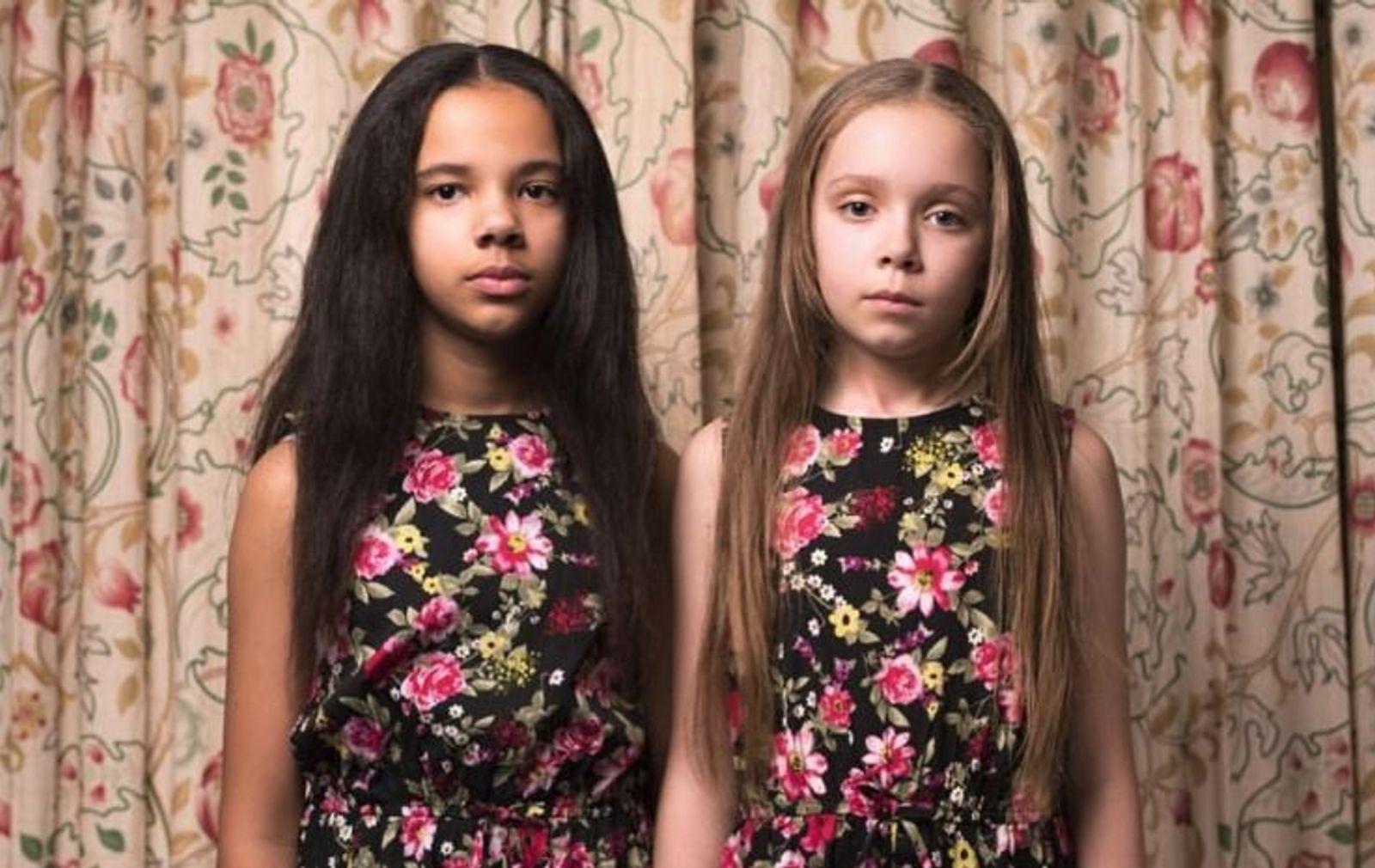Ces jumelles redéfinissent la notion même de race