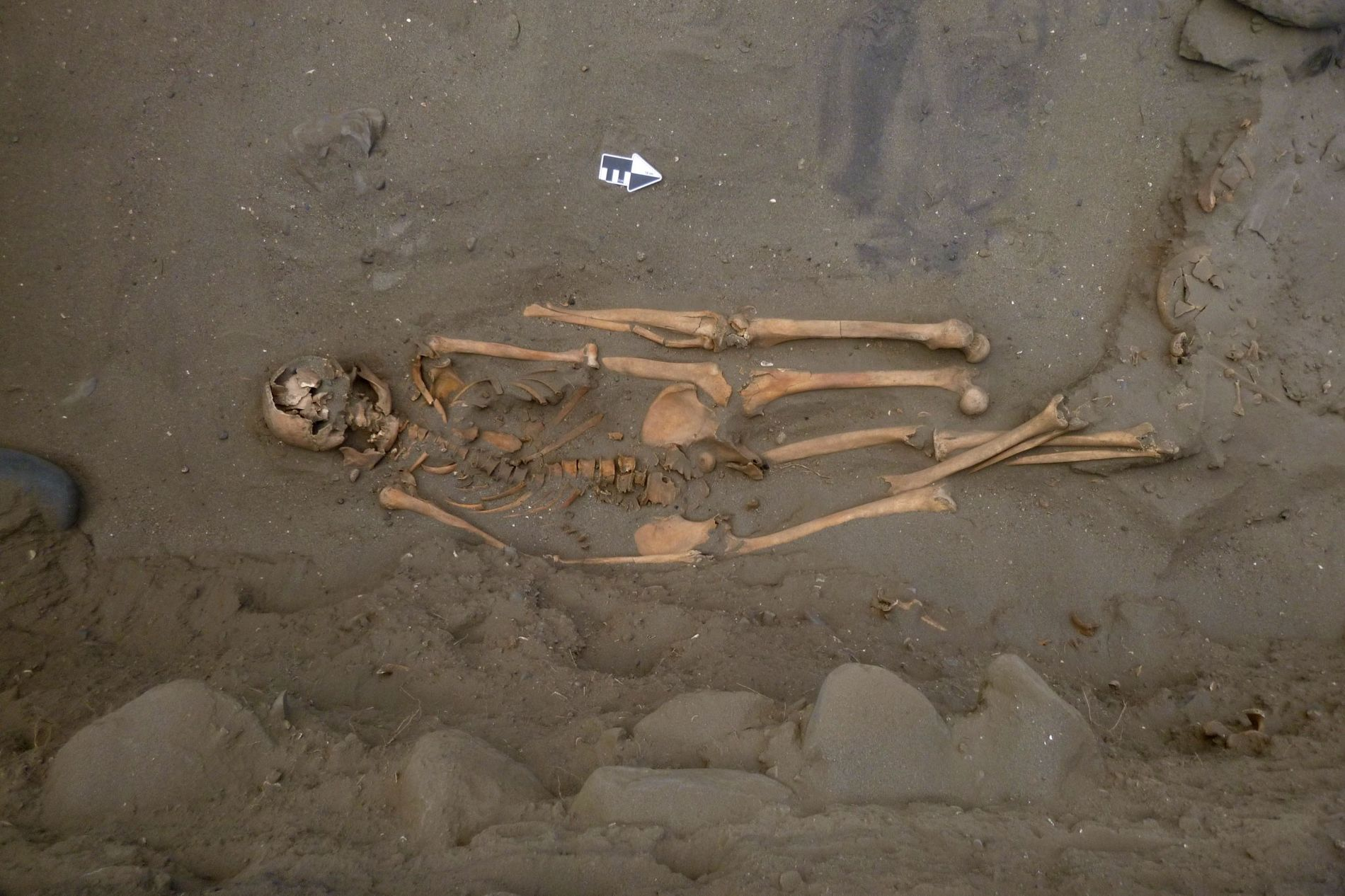 Cette ancienne sépulture a surpris les archéologues : deux jambes gauches supplémentaires ont été enterrées le ...