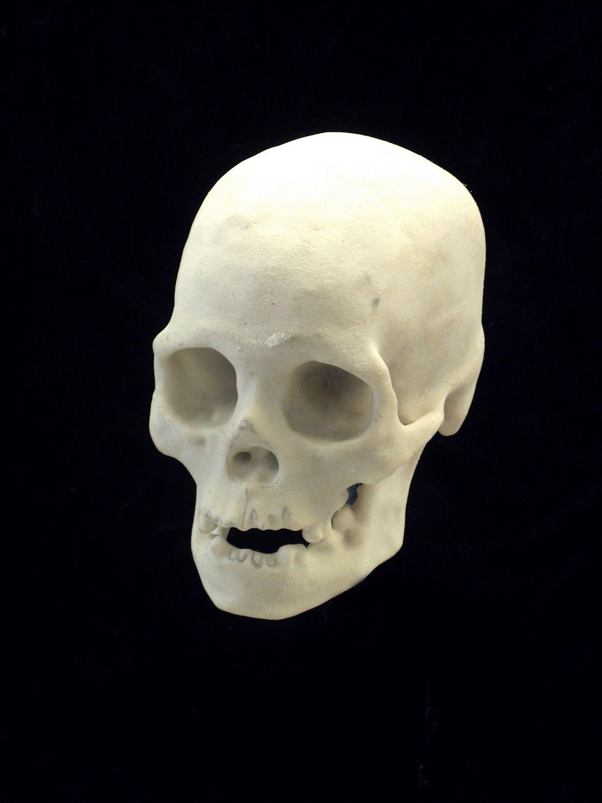 Le crâne a été scanné et modélisé en 3D pour servir de base à la reconstruction.
